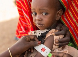 Vor allem Kinder leiden unter den Folgen der Hungerkatastrophe © ChildFund