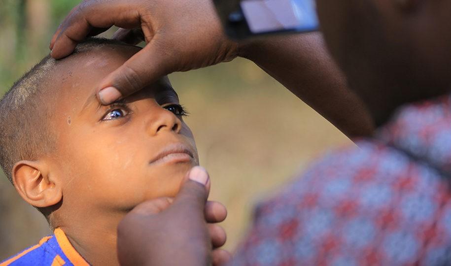 Unsere Mitgliedsorganisation Menschen für Menschen bekämpft die Augenkrankheit Trachom in Äthiopien. Foto: Menschen für Menschen